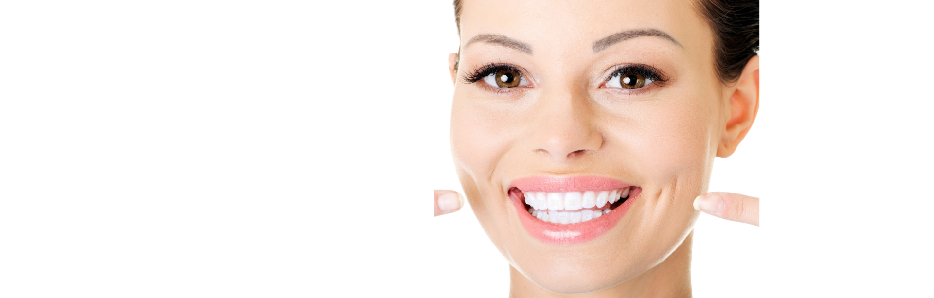 Smart-Braces-Invisible-Tooth-Attachments